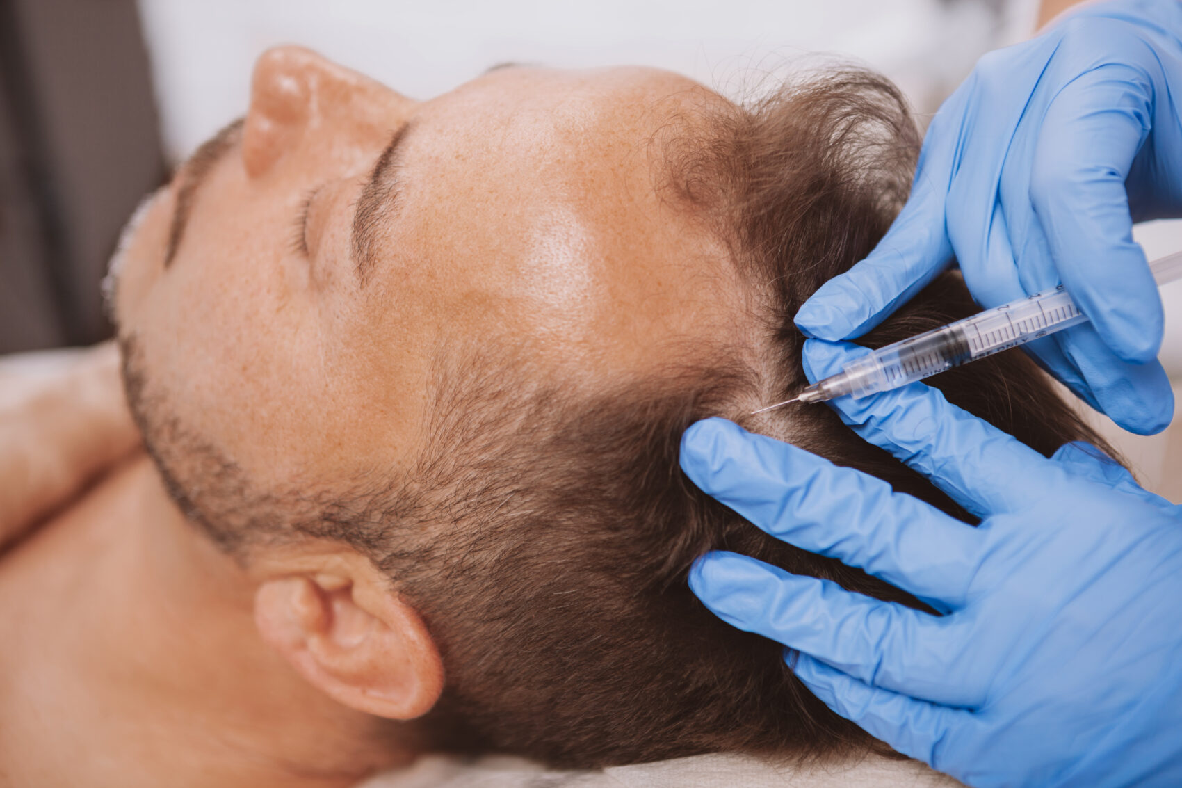 hair transplant antalya