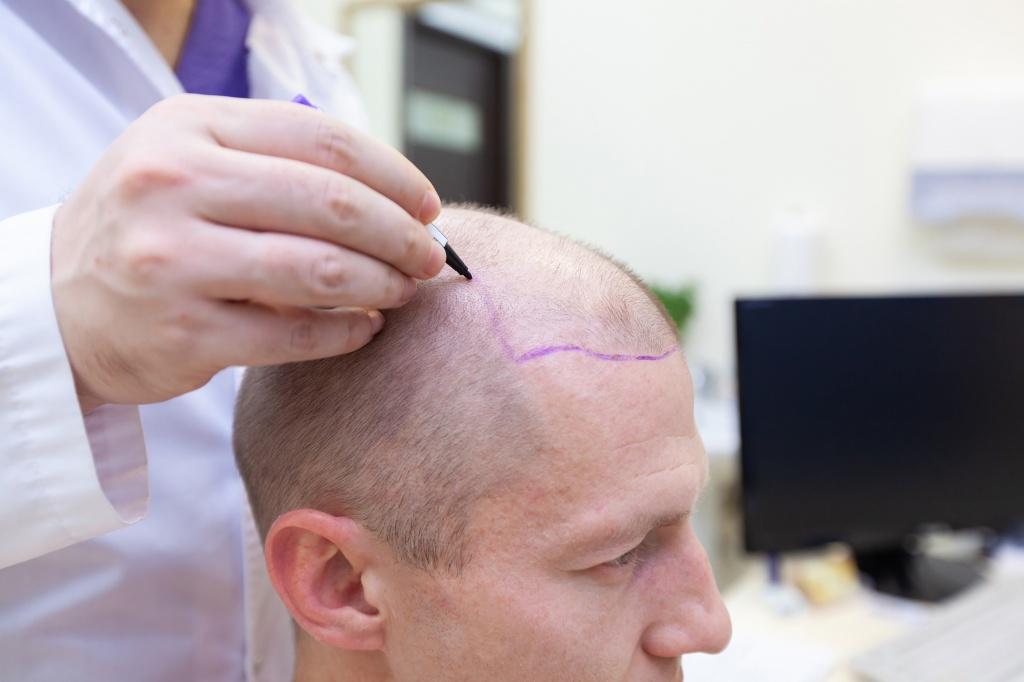 hair-transplant-istanbul