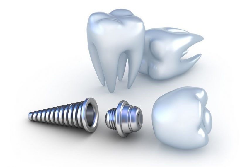 Prices of Dental Implants in Turkey