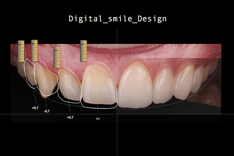 Everything about Digital Smile Design