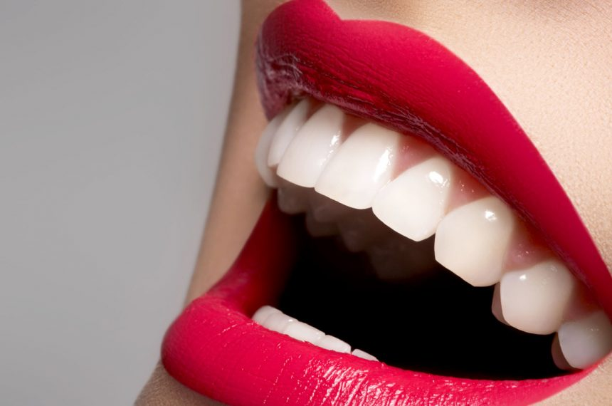 What Are the Advantages of Porcelain Veneers?