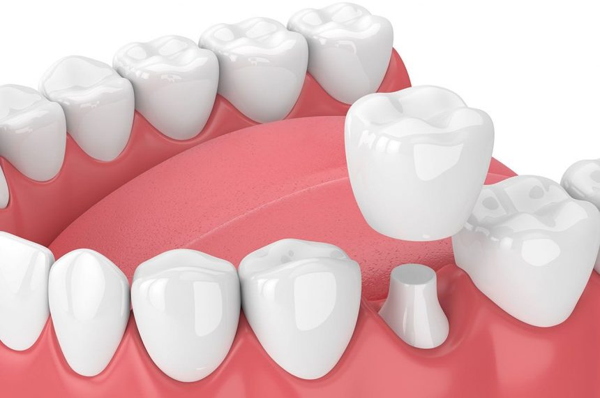How Does a Zirconia Crown Work?
