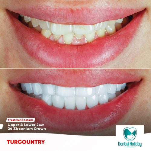 zirconia crown turkey cost - before - after - dental clinic
